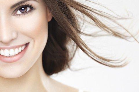 Szikrázó fogsor fogkő nélkül