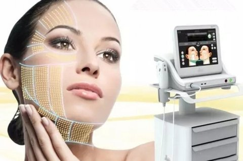 Serenity MED 3D 11 soros HIFU ránctalanító kezelés
