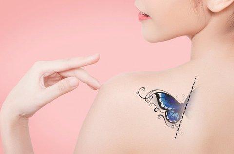 Tetoválás eltávolítása gyorsan és hatékonyan