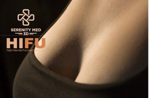 Hamvasabb dekoltázs Serenity MED 3D HIFU-val