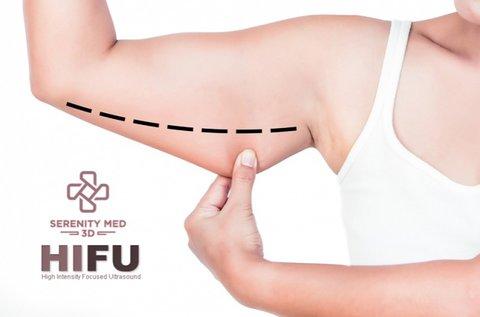 HIFU fogyasztó és feszesítő kezelés felkarokon