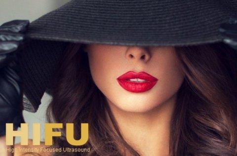 HIFU kezelés a szájkörüli ráncok ellen