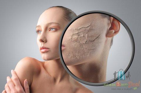 Carbon Peeling lézeres kezelés aknés bőrre