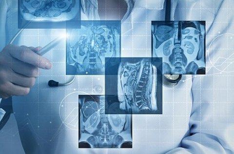 Daganatszűrő MR és PSA vizsgálat férfiak részére