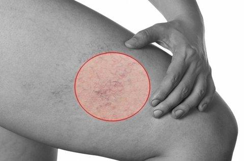 5 alkalmas lézeres kezelés hajszálér, rosacea ellen