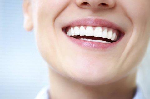 Egészséges fogak ultrahangos fogkőlevétellel