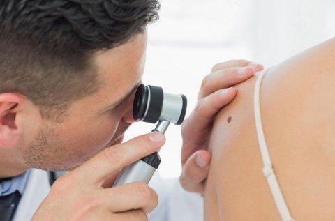 Bőrgyógyászati vizsgálat melanoma szűréssel