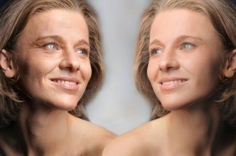 Intenzív ráncfeltöltő kezelés arc, toka, nyak területen