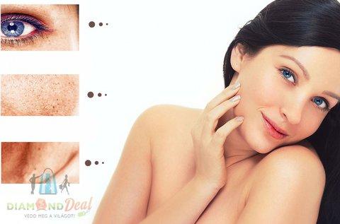 3 alkalom lézeres kezelés pigmentfolt és szeplő ellen