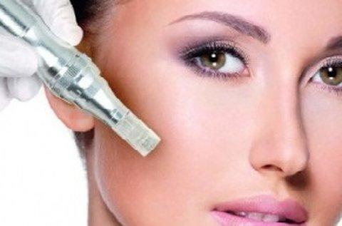Hibátlan bőr Nanopen és OxyJet arckezeléssel