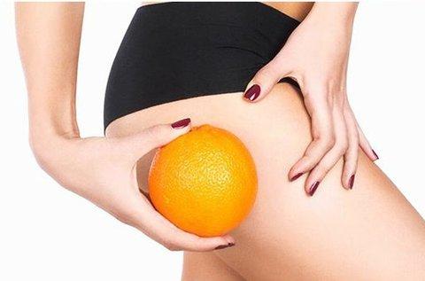 Narancsbőr eltüntetés vákuumos zsírtöréssel