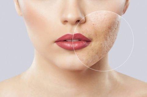 Aknés, pattanásos arcbőr kezelése Dermarollerrel