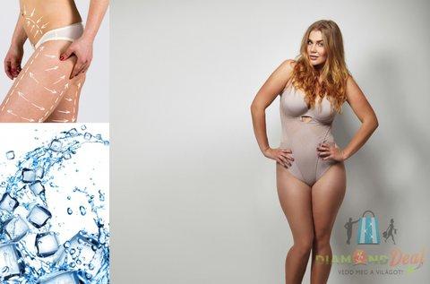 Zsírfagyasztás 4 tenyérnyi tetszőleges területen