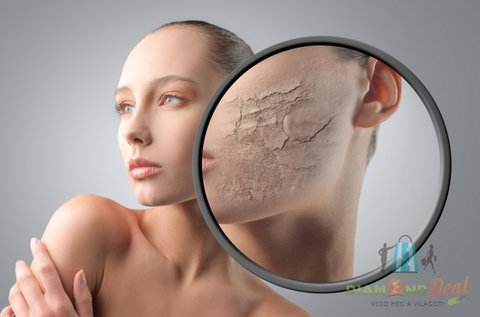 4 alkalmas Carbon Peeling lézeres arckezelés