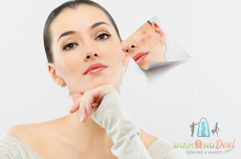 Hibátlan arcbőr Carbon Peeling lézeres kezeléssel