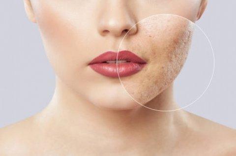 Problémás arcbőr kezelése Dermarollerrel