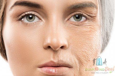 Bőrfiatalító arckezelés fizikoterápiás lézerrel