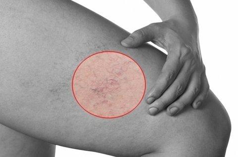 Hajszálér, rosacea elleni lézeres kezelés