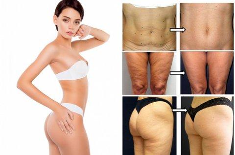 Body Thermage II feszesítő, alakformáló testkezelés
