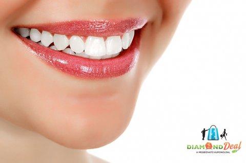 Tökéletes fogsor digitális mosolytervezéssel