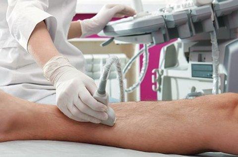 Végtagi ultrahangos vénás doppler vizsgálat