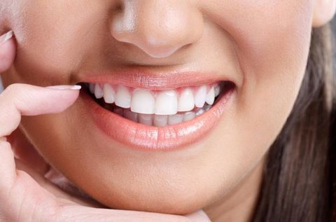 Gyönyörű mosoly láthatatlan fogszabályozással