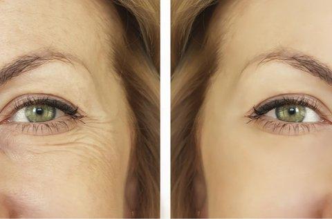 Plasztika hatású szemhéj, szemkörnyék fiatalítás