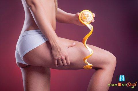 Feszes vonalak kavitációs zsírbontással