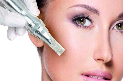 Ragyogó bőr Nanopen és Oxyjet arckezeléssel