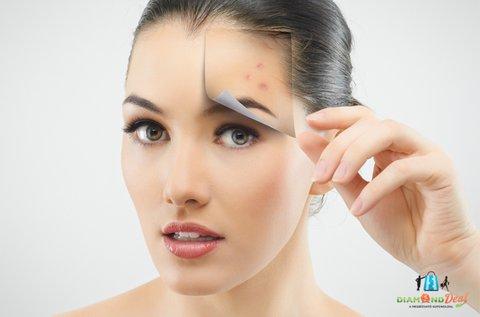 Üde, friss arcbőr Skincare lézeres kezeléssel