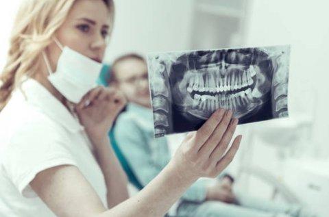 Digitális panorámaröntgen készítés