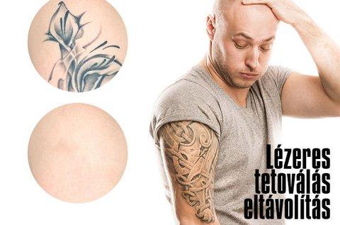 Lézeres tetoválás eltávolítás 5x5 cm-es területen