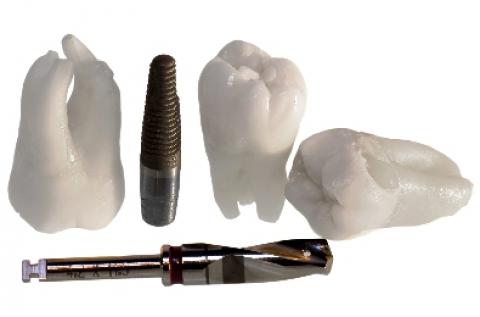 1 db fogászati implantátum beültetése