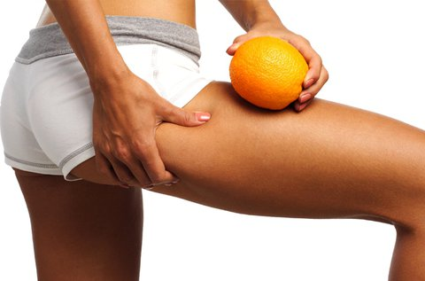 Narancsbőr elleni cellutek kezelés 1 alkalommal