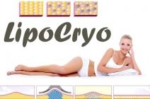 3 alkalmas Cryolipolysis zsírfagyasztás a belvárosban