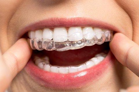 Láthatatlan kivehető fogszabályzó 1 fogívre