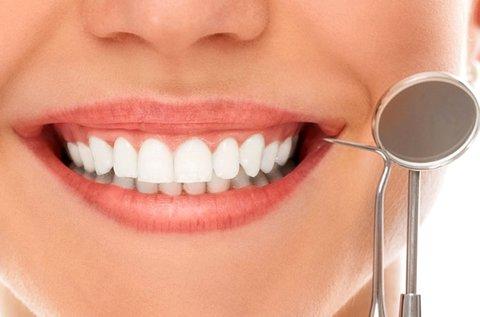 Gyönyörű fogak ultrahangos fogkő-eltávolítással