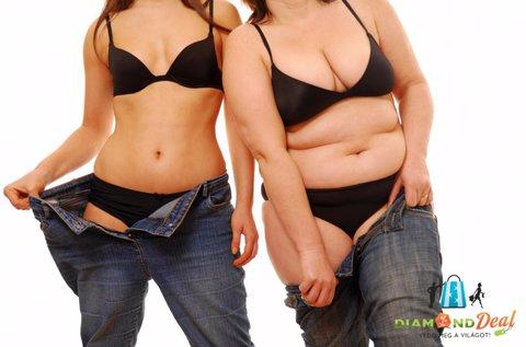 5 alkalmas testsúly- és méretcsökkentő kezelés