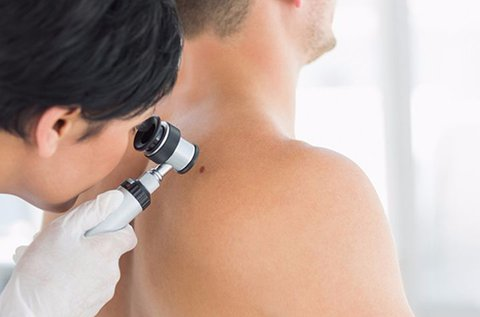 Dermatoszkópos anyajegy- és melanomaszűrés