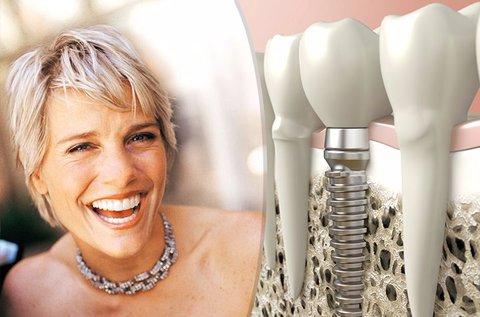 Rögtön terhelhető egyrészes fogimplantátum