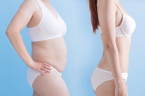 10 alkalmas zsírfagyasztás választható területen