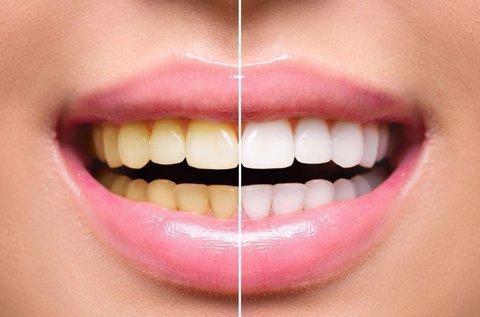 Professzionális fogászati fogfehérítés