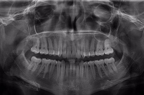 Digitális panorámaröntgen CD-vel