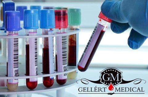 Komplett laborvizsgálat teljes vérképpel, lelettel