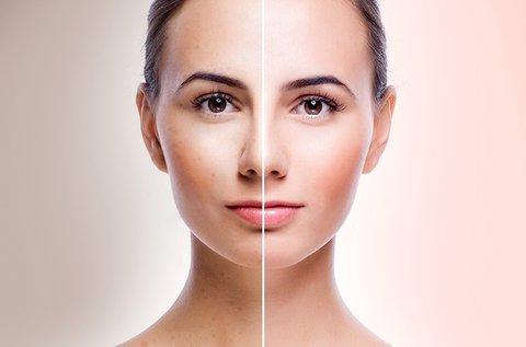 1 alkalom lézeres pigmentfolt kezelés