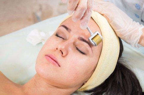Varázsold újjá a bőröd dermaroller kezeléssel!