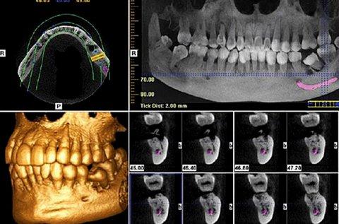 3D Cone Beam fül-orr-gégészeti CT