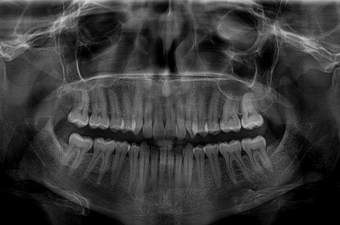 Digitális panorámaröntgen