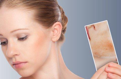 Bőrhibák eltűntetése RBS-C Vascularis géppel