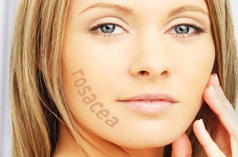 Rosacea eltüntető kezelés teljes arcon